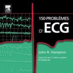 Souvent acheté avec L'ECG facile, le 150 problèmes d'ECG