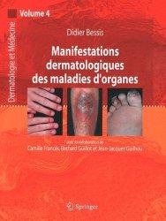 Souvent acheté avec Dermatologie sur peau noire en France métropolitaine, le Manifestations dermatologiques des maladies d'organes Vol 4