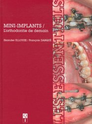 Mini-implants