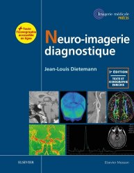 Dernières parutions dans Imagerie médicale : Précis, Neuro-imagerie diagnostique