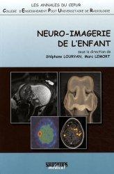 Dernières parutions sur Imagerie pédiatrique, Neuro-Imagerie de l'Enfant