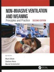 Dernières parutions sur Pneumologie, Non-Invasive Ventilation and Weaning