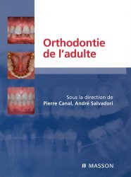 Souvent acheté avec Orthodontie linguale, le Orthodontie de l'adulte