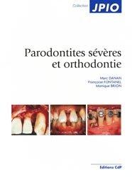 Souvent acheté avec Les techniques de laboratoire en Orthodontie, le Parodonties sévères et orthodontie