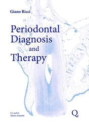 Dernières parutions sur Parodontologie, Periodontal Diagnosis and Therapy
