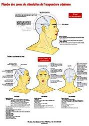 Souvent acheté avec Epimed, le Planche des zones de stimulation de l'acupuncture crânienne