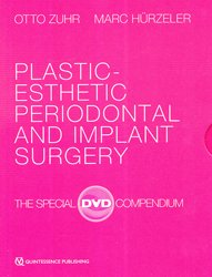 Dernières parutions sur Chirurgie - Stomatologie, Plastic-esthetic periodontal and implant surgery