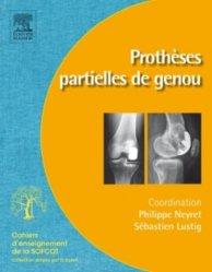 Dernières parutions dans Cahiers d'enseignement de la SOFCOT, Prothèses partielles de genou