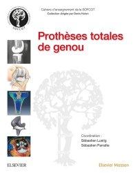 Dernières parutions sur Chirurgie orthopédique, Prothèses totales de genou