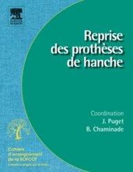 Dernières parutions dans Cahiers d'enseignement de la SOFCOT, Reprise des prothèses de hanche
