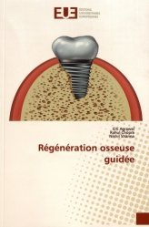 Dernières parutions sur Dentaire, Régénération osseuse guidée