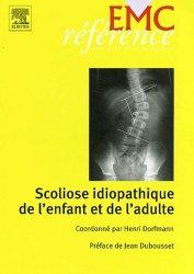 Dernières parutions dans EMC référence, Scoliose idiopathique de l'enfant et de l'adulte