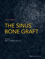 Dernières parutions sur Publications en anglais - English books, The Sinus Bone Graft