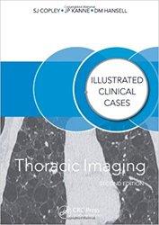 Dernières parutions dans , Thoracic Imaging: Illustrated Clinical Cases