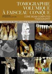 Souvent acheté avec Diagnostic radiologique dentaire et facial Exercices, le Tomographie volumique à faisceau conique