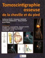 Souvent acheté avec Cardiologie nucléaire, le Tomoscintigraphie osseuse de la cheville et du pied