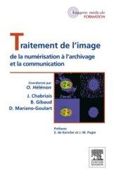 Dernières parutions dans Imagerie Médicale Formation, Traitement de l'image