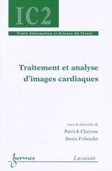Traitement et analyse d'images cardiaques