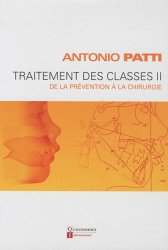 Traitement des classes II