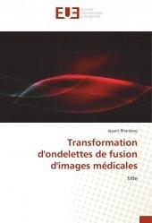 Dernières parutions sur Imagerie médicale, Transformation d'ondelettes de fusion d'images médicales