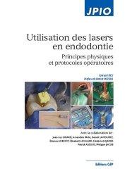 Dernières parutions dans JPIO, Utilisation des lasers en endodontie
