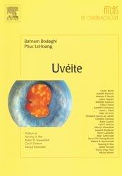 Souvent acheté avec Strabologie, le Uvéite