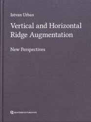 Dernières parutions sur Publications en anglais - English books, Vertical and Horizontal Ridge Augmentation