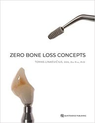 Dernières parutions sur Publications en anglais - English books, Zero bone loss concept