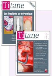 ABONNEMENT EUROPE : Revue Titane Numéro 1 en implantologie