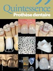 ABONNEMENT FRANCE METRO : Revue Quintessence Prothèse dentaire