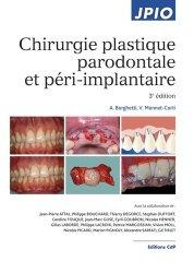 Chirurgie plastique parodontale
