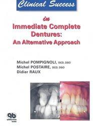 Clinical Success in Immediate Complete Dentures: An Alternative Approach