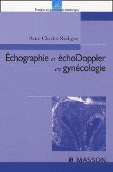 Échographie et échoDoppler en gynécologie