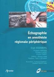 Échographie en anesthésie régionale périphérique