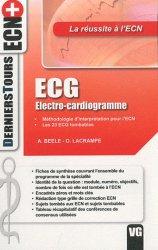ECG - Electro-cardiogramme