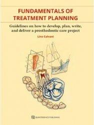 Fondamentals of Treatment Planning