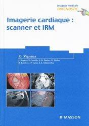 Imagerie cardiaque scanner et IRM