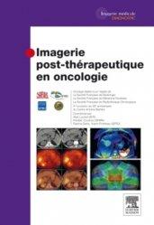 Imagerie post-thérapeutique en oncologie