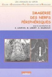 Imagerie des nerfs périphériques