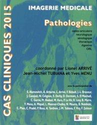 Imagerie médicale - Pathologies