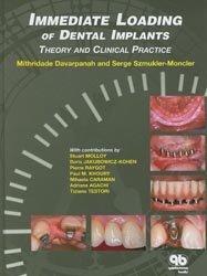 Immediate Loading of Implant Dentistry