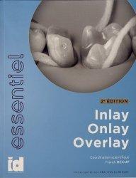 Inlay, Onlay, Overlay