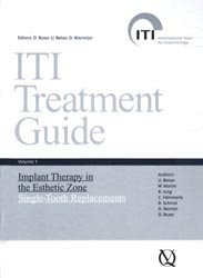 ITI Treatment Guide Volume 1