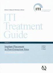 ITI Treatment Guide Volume  3