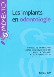 Les implants en odontologie
