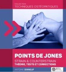 Les points de Jones