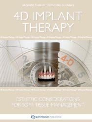 4D Implant Therapy