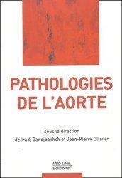 Pathologies de l'aorte