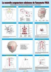 Planche de la nouvelle acupuncture crânienne de Yamamoto. YNSA