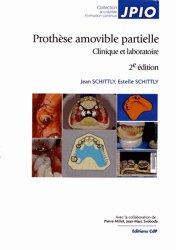 Prothèse amovible partielle